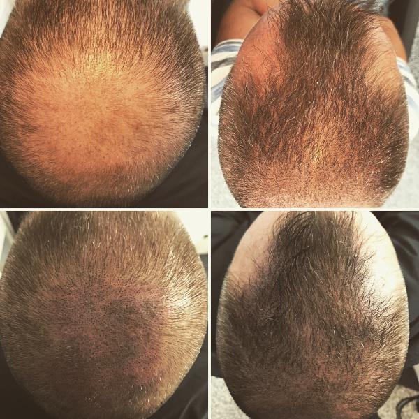 Päänahan pigmentointi