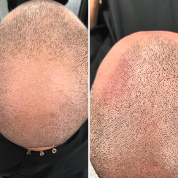 HFS Päänahan pigmentoinnit